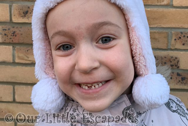 Little E's First Lost Baby Tooth